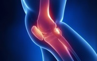 The ACL is one of four ligaments in the knee.